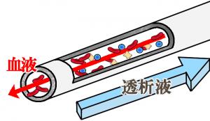 ダイアライザーの中空糸イメージ図